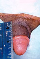 Penile lengthening to correct a buried penis.
